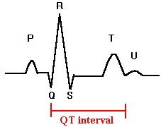 QT interval