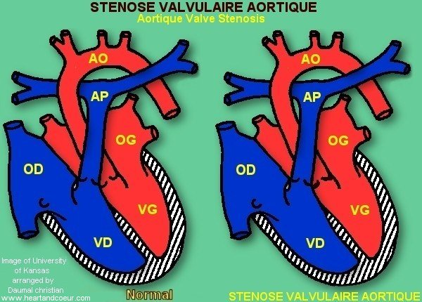 St�nose Valvulaire aortique - Aortique Valve Stenosis