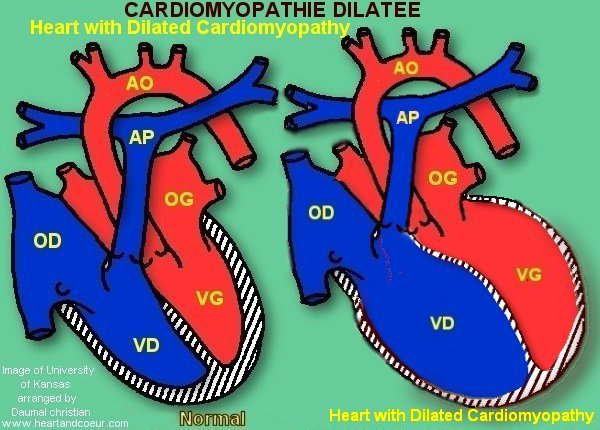 Cardiomyopathy dilated by daumal