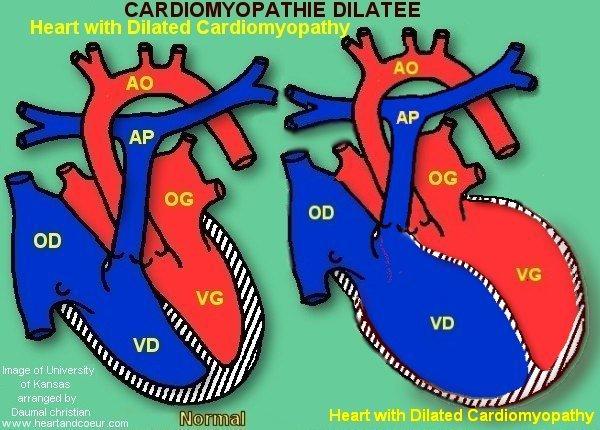 Cardiomyopathy dilated by daumal