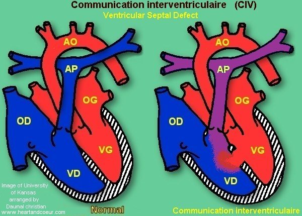 Communication intraventriculaire,CIV,Ventricular Septal Defect,VSD