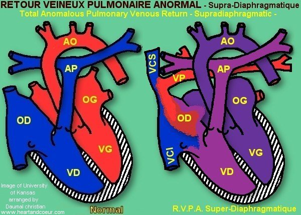 Retour Veineux pulmonaire supradiaphragmatique - Total Anomalous Pulmonary Venous Return supradiaphragmatic